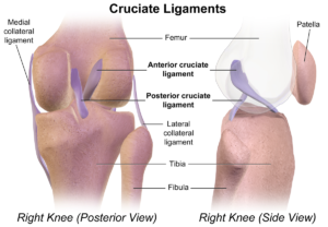 legamento crociato del ginocchio lesione