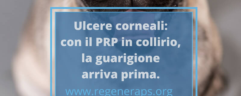 ulcere corneali con il PRP guarisce