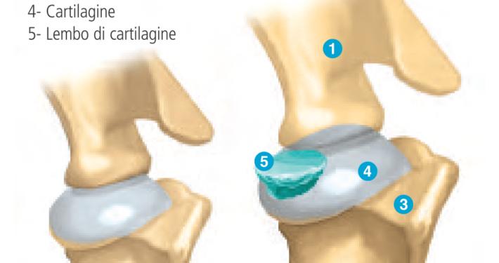 osteocondrite dissecante cane distacco cartilagine